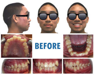 Future Smiles Orthodontics Guam