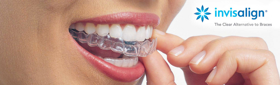 Invisalign | Future Smiles Orthodontics Guam
